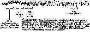 PEMF frequencies